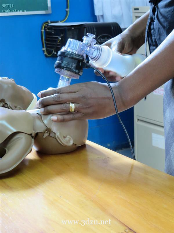 3D打印增強嬰兒呼吸器拯救無法呼吸的新生兒
